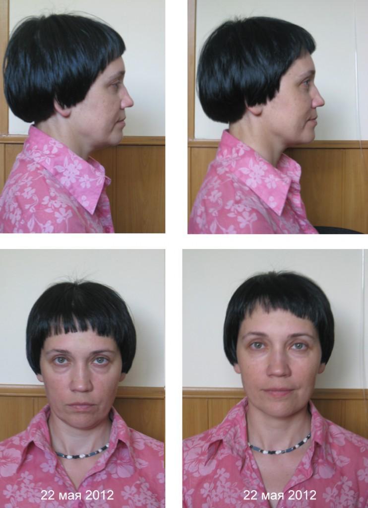Гимнастика для лица, фейскультура: результаты